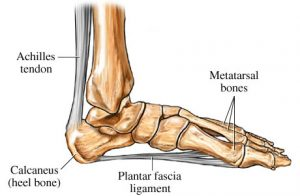 Plantar Fasciitis Relief and Fitted Arch Support
